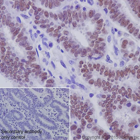 Immunohistochemistry (Formalin/PFA-fixed paraffin-embedded sections) - Anti-PAX8 antibody [EPR18715] - BSA and Azide free (ab246332)