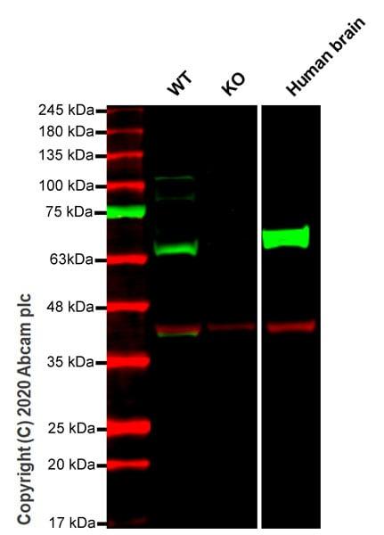 Western blot - Anti-Fyn antibody [EPR19636] - BSA and Azide free (ab246333)