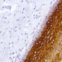 Immunohistochemistry (Formalin/PFA-fixed paraffin-embedded sections) - Anti-LYPD3 antibody [SP208] - BSA and Azide free (ab246349)