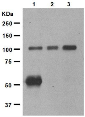 Western blot - Anti-Ionotropic Glutamate receptor 2 antibody [EP966Y] - BSA and Azide free (ab246356)