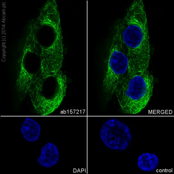 Immunocytochemistry/ Immunofluorescence - Anti-EB3 antibody [EPR11421(B)] - BSA and Azide free (ab246357)