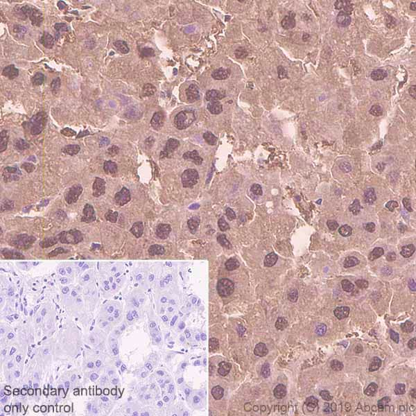 Immunohistochemistry (Formalin/PFA-fixed paraffin-embedded sections) - Anti-Proteasome 20S LMP7 antibody [EPR14482(B)] - BSA and Azide free (ab246363)