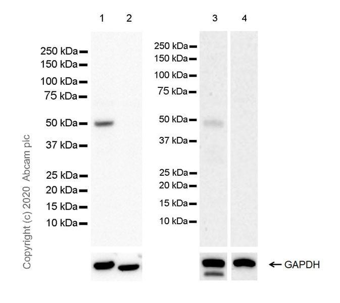 Western blot - Anti-FOXL2 antibody [EPR23523-68] (ab246511)