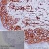 Immunohistochemistry (Formalin/PFA-fixed paraffin-embedded sections) - Anti-CD44 antibody [EPR1013Y] - Low endotoxin, Azide free (ab246690)