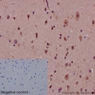 Immunohistochemistry (Formalin/PFA-fixed paraffin-embedded sections) - Anti-Notch1 antibody [EP1238Y] - Low endotoxin, Azide free (ab246693)