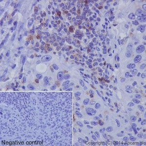 Immunohistochemistry (Formalin/PFA-fixed paraffin-embedded sections) - Anti-CD11a antibody [EP1285Y] - Low endotoxin, Azide free (ab246701)
