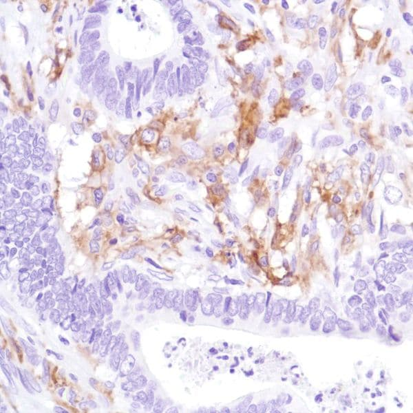 Immunohistochemistry (Formalin/PFA-fixed paraffin-embedded sections) - Anti-CD16a antibody [SP189] - Low endotoxin, Azide free (ab246798)
