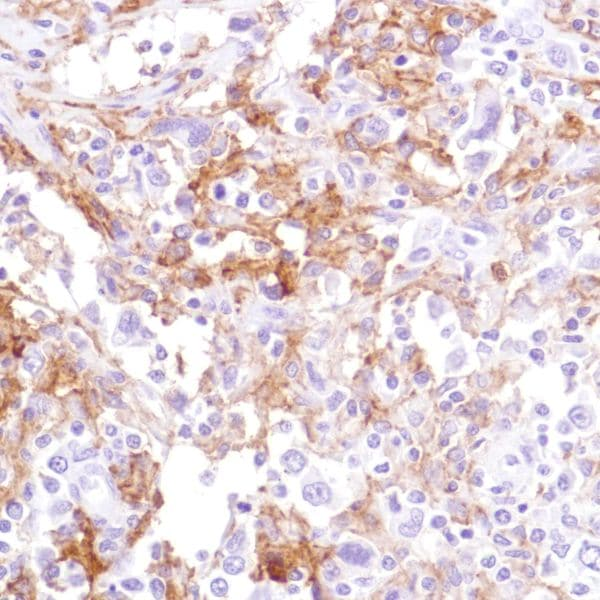 Immunohistochemistry (Formalin/PFA-fixed paraffin-embedded sections) - Anti-CD16 antibody [SP189] - Low endotoxin, Azide free (ab246798)