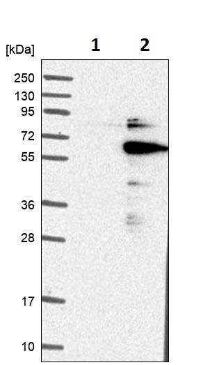 Western blot - Anti-DGCR14 antibody (ab246855)