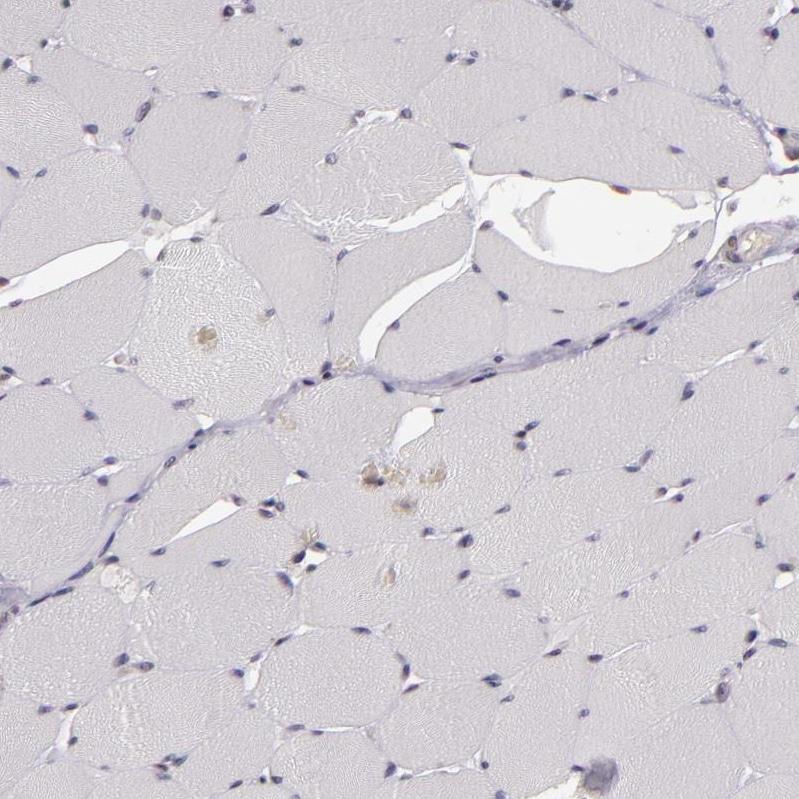 Immunohistochemistry (Formalin/PFA-fixed paraffin-embedded sections) - Anti-Zfx antibody (ab246858)