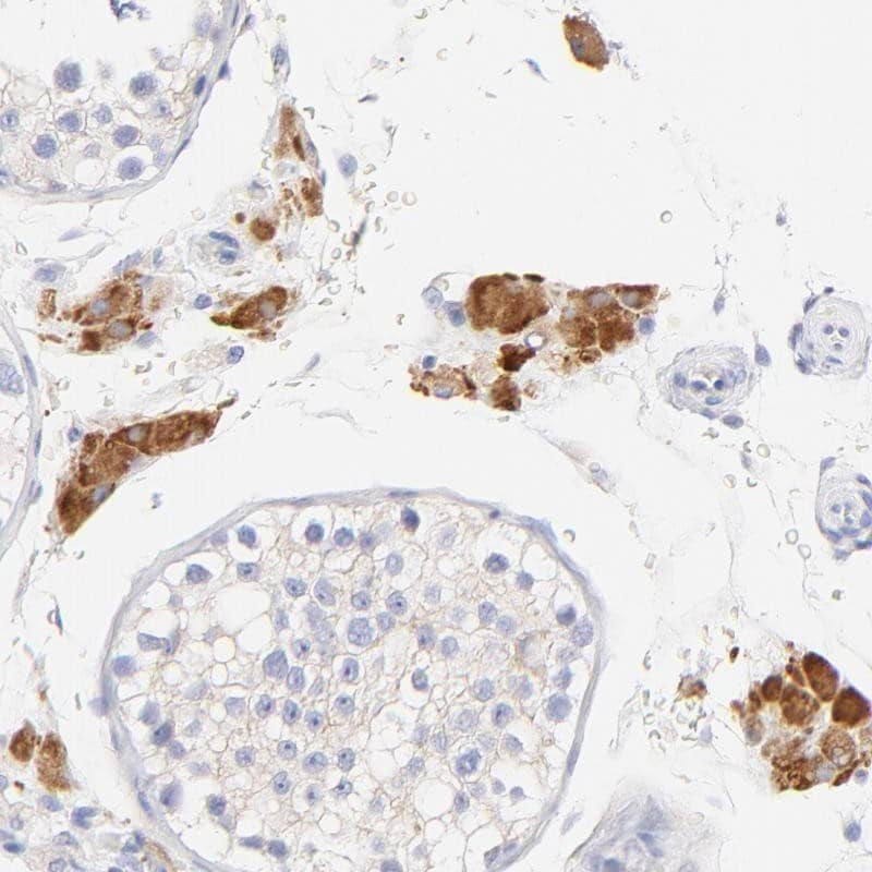 Immunohistochemistry (Formalin/PFA-fixed paraffin-embedded sections) - Anti-emopamil binding protein antibody (ab246864)