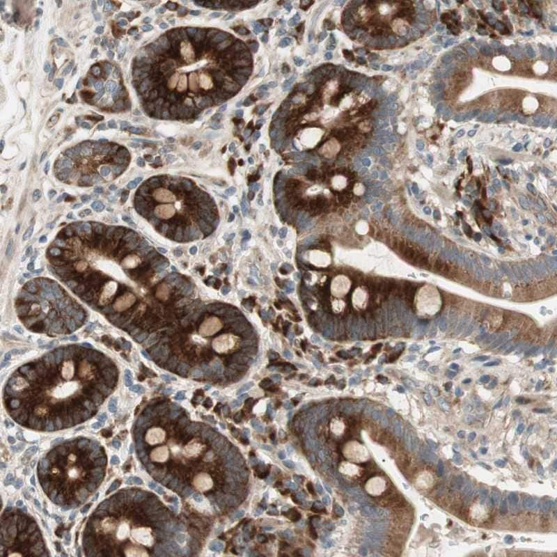 Immunohistochemistry (Formalin/PFA-fixed paraffin-embedded sections) - Anti-Apolipoprotein O antibody (ab246865)