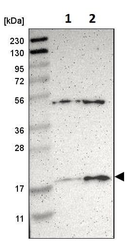 Western blot - Anti-Apolipoprotein O antibody (ab246865)