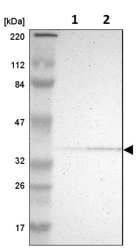 Western blot - Anti-PDLIM2 antibody (ab246868)