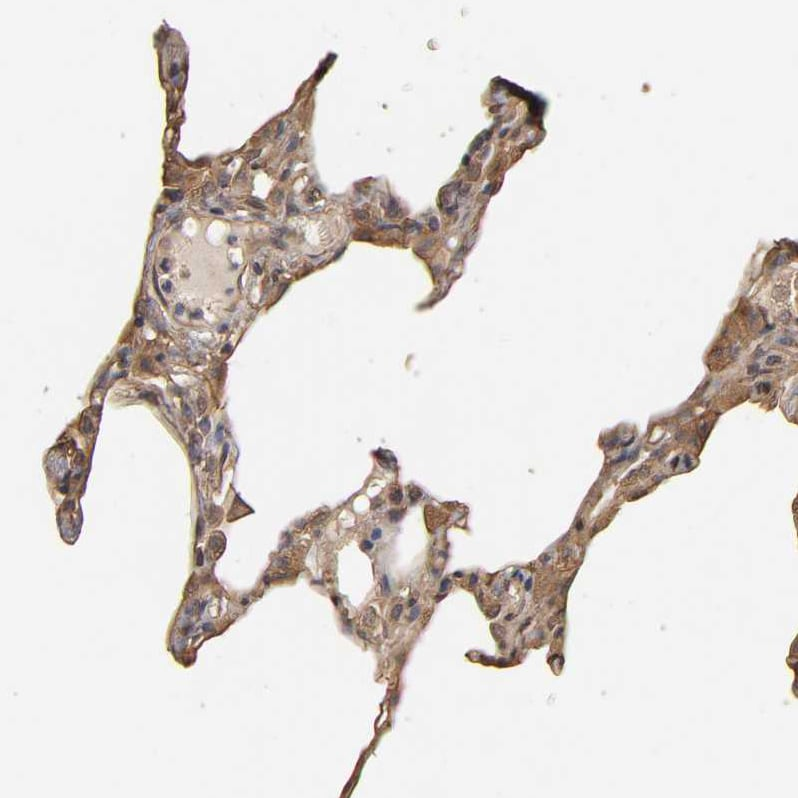 Immunohistochemistry (Formalin/PFA-fixed paraffin-embedded sections) - Anti-VSIG4 antibody (ab246869)