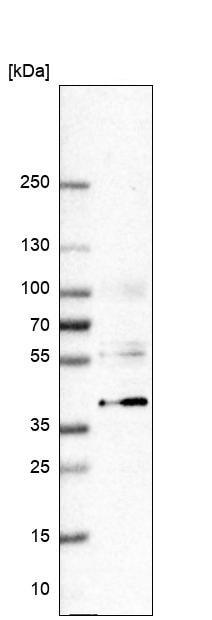 Western blot - Anti-VSIG4 antibody (ab246869)