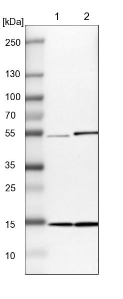 Western blot - Anti-UBC4 antibody (ab246870)