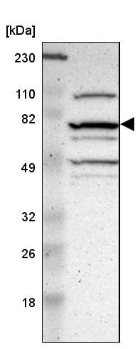 Western blot - Anti-Chromosome X open reading frame 6 antibody (ab246871)