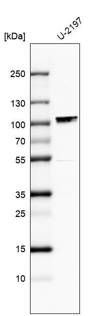 Western blot - Anti-Chromosome X open reading frame 6 antibody (ab246871)