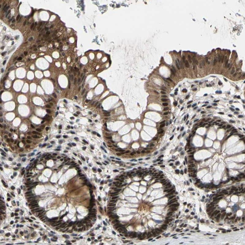 Immunohistochemistry (Formalin/PFA-fixed paraffin-embedded sections) - Anti-PRKRIR antibody (ab246889)