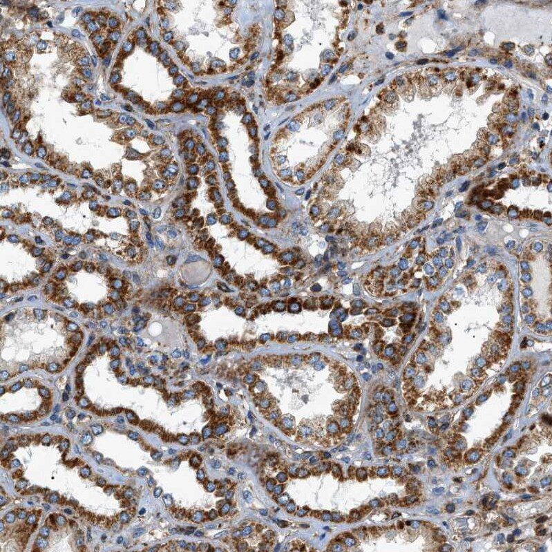 Immunohistochemistry (Formalin/PFA-fixed paraffin-embedded sections) - Anti-DHODH antibody (ab246893)