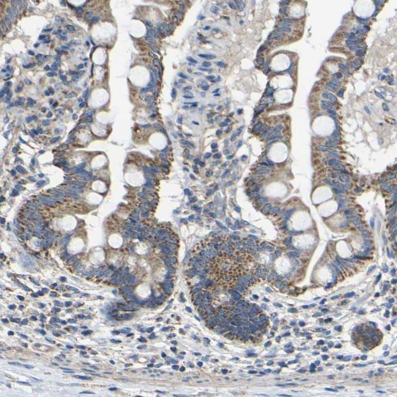 Immunohistochemistry (Formalin/PFA-fixed paraffin-embedded sections) - Anti-DDX26B antibody (ab246906)