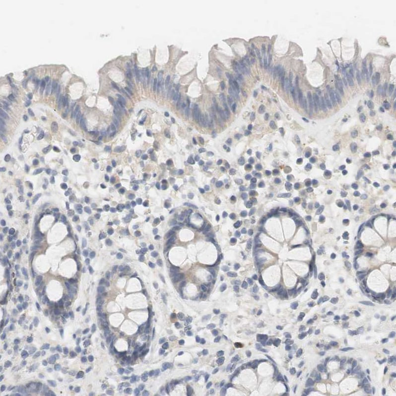Immunohistochemistry (Formalin/PFA-fixed paraffin-embedded sections) - Anti-RTN3/HAP antibody (ab246911)