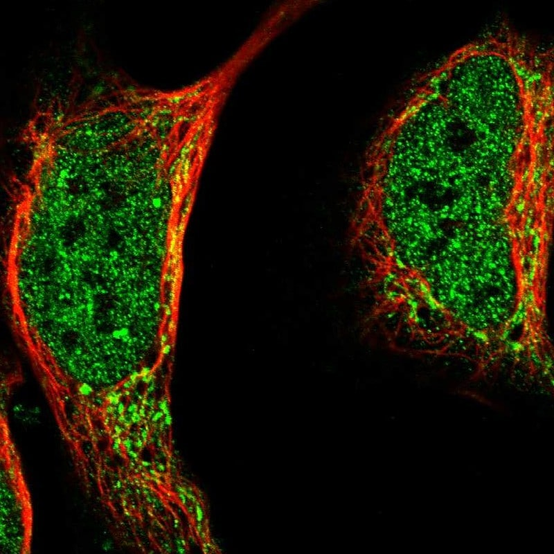 Immunocytochemistry - Anti-LIAS antibody (ab246917)