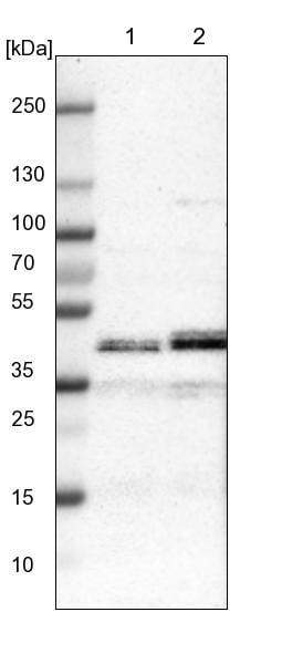 Western blot - Anti-LIAS antibody (ab246917)