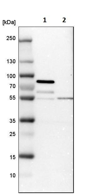 Western blot - Anti-STAU2 antibody (ab246918)