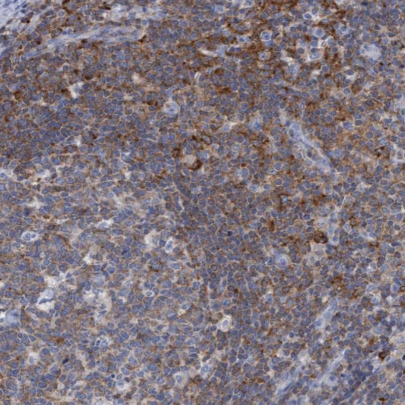 Immunohistochemistry (Formalin/PFA-fixed paraffin-embedded sections) - Anti-FBP17 antibody (ab246920)
