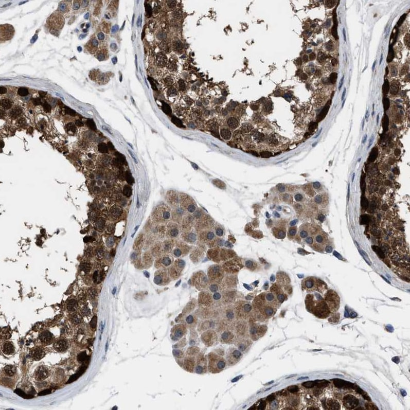 Immunohistochemistry (Formalin/PFA-fixed paraffin-embedded sections) - Anti-CEE antibody (ab246921)