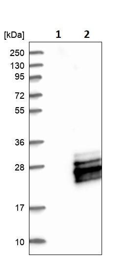 Western blot - Anti-MRI antibody (ab246926)