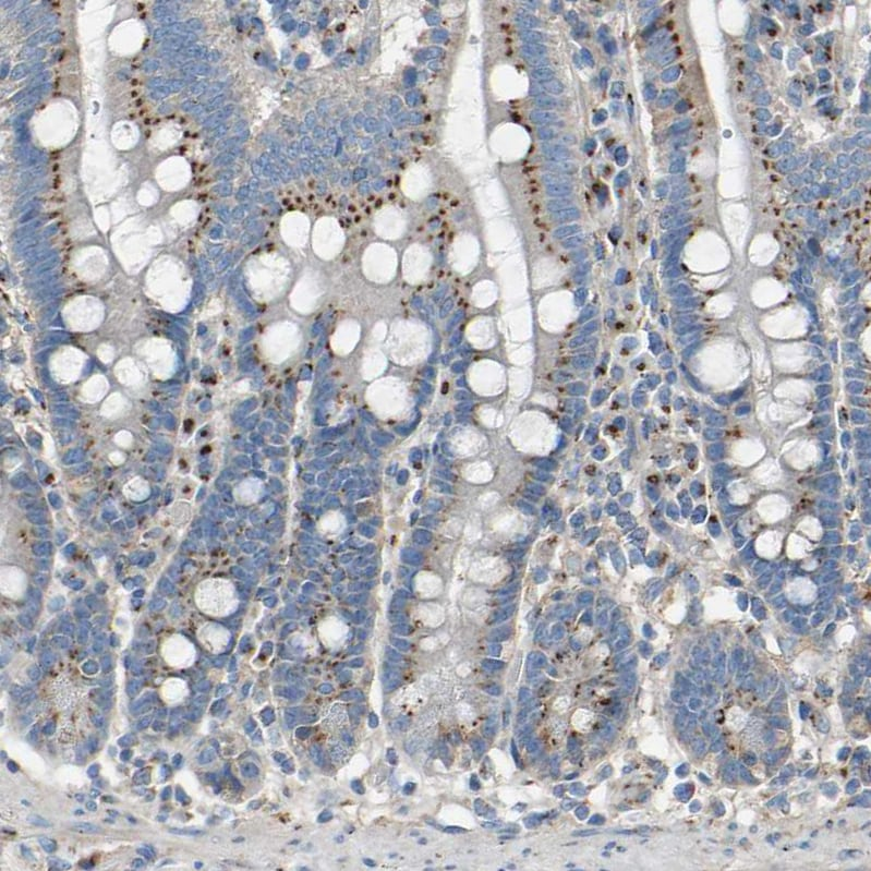 Immunohistochemistry (Formalin/PFA-fixed paraffin-embedded sections) - Anti-MRI antibody (ab246926)