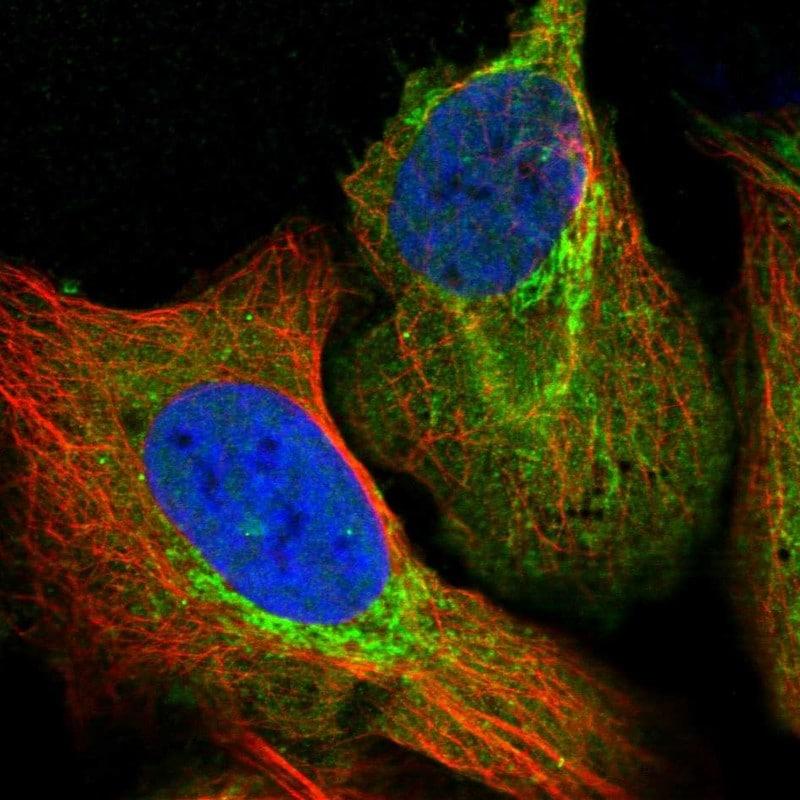 Immunocytochemistry/ Immunofluorescence - Anti-ALDH1B1 antibody (ab246928)
