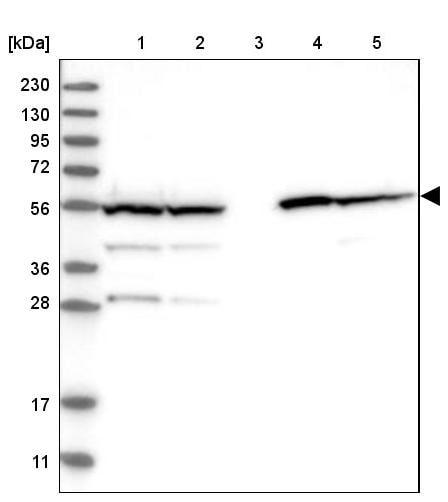 Western blot - Anti-ALDH1B1 antibody (ab246928)