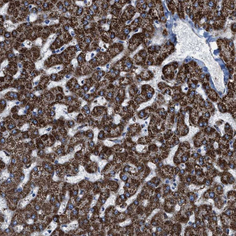 Immunohistochemistry (Formalin/PFA-fixed paraffin-embedded sections) - Anti-ALDH1B1 antibody (ab246928)