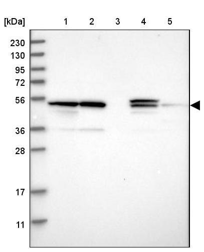 Western blot - Anti-PSMD12 antibody (ab246940)