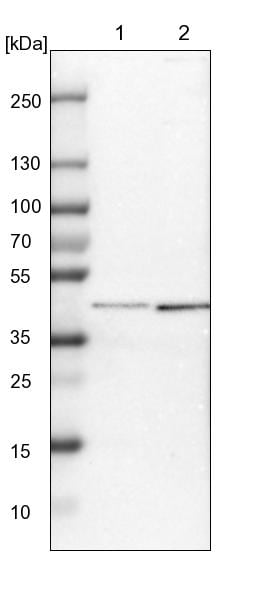 Western blot - Anti-SP6 antibody (ab246952)