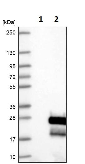 Western blot - Anti-Endothelin 2/ET-2 antibody (ab246962)