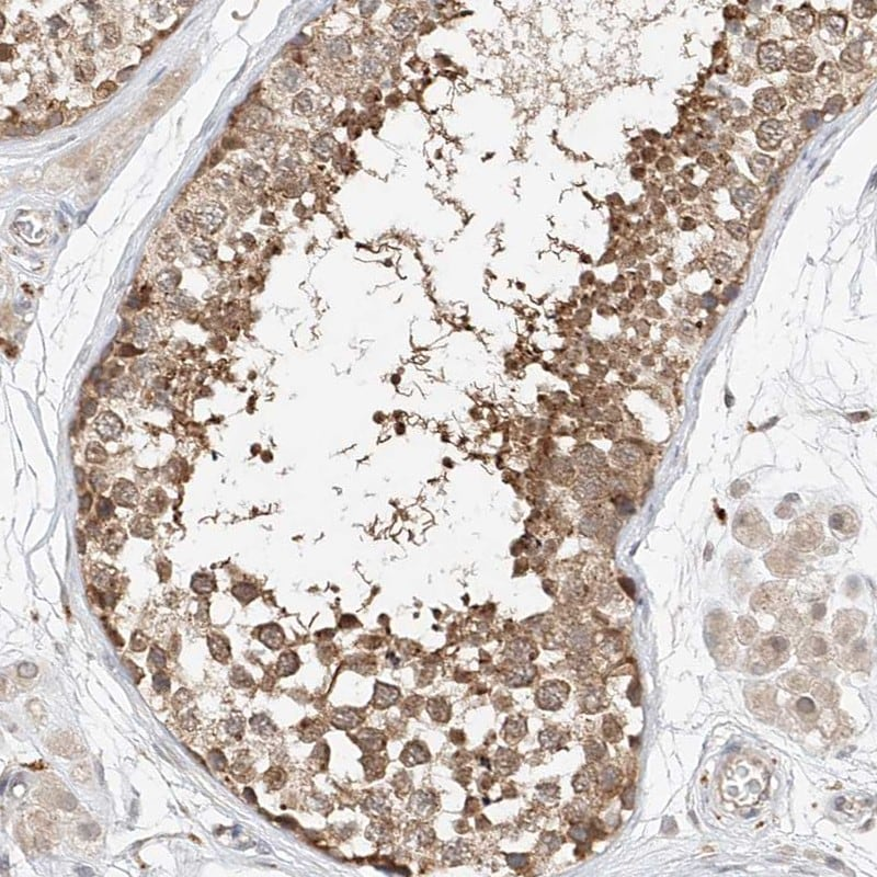 Immunohistochemistry (Formalin/PFA-fixed paraffin-embedded sections) - Anti-ARHI antibody (ab246963)