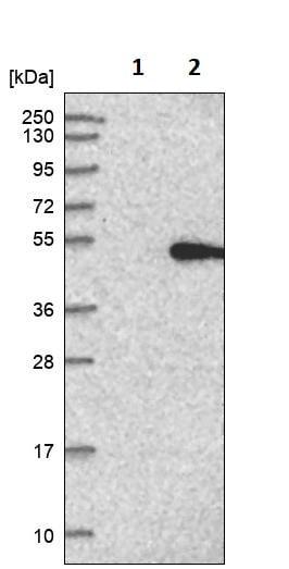 Western blot - Anti-LPAP antibody (ab246964)