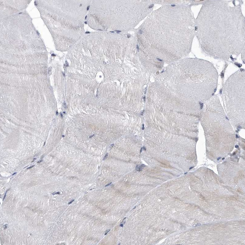 Immunohistochemistry (Formalin/PFA-fixed paraffin-embedded sections) - Anti-KIAA1429 antibody (ab246982)