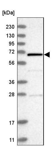Western blot - Anti-REC8 antibody (ab246985)