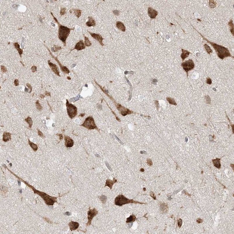 Immunohistochemistry (Formalin/PFA-fixed paraffin-embedded sections) - Anti-UBAP2L antibody (ab246989)