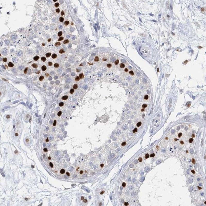 Immunohistochemistry (Formalin/PFA-fixed paraffin-embedded sections) - Anti-mH2A2 antibody (ab246995)