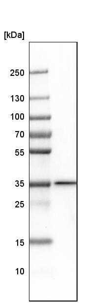 Western blot - Anti-mH2A2 antibody (ab246995)