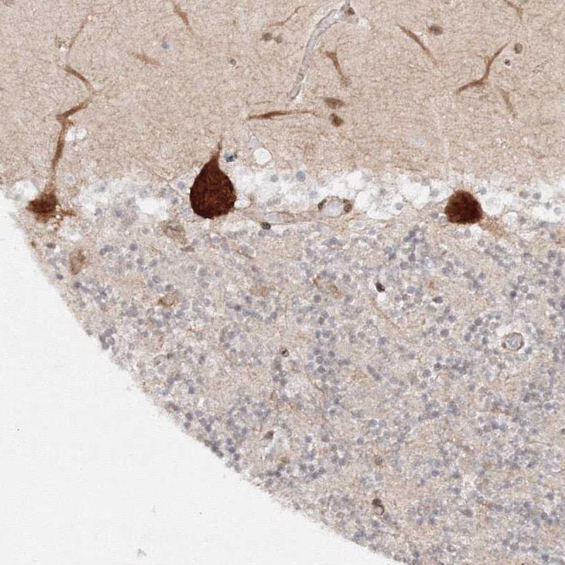Immunohistochemistry (Formalin/PFA-fixed paraffin-embedded sections) - Anti-HARS antibody (ab246996)