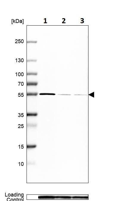 Western blot - Anti-HARS antibody (ab246996)