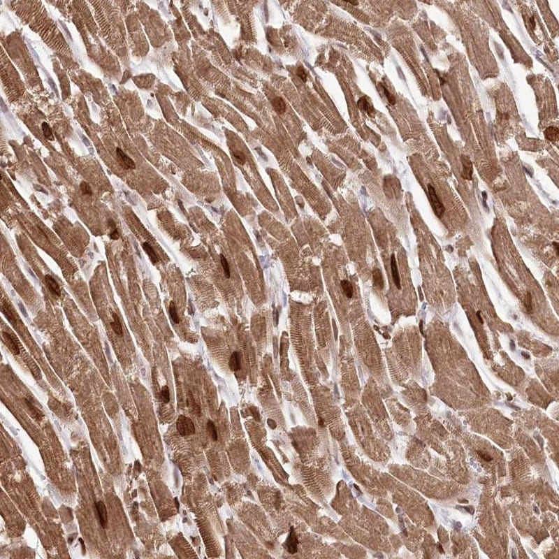 Immunohistochemistry (Formalin/PFA-fixed paraffin-embedded sections) - Anti-SORBS2 antibody (ab247001)